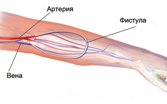 Что такое артериовенозная фистула