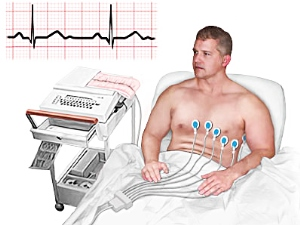 ЭКГ при кардиогенном шоке