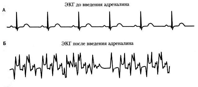 ЭКГ до и после адреналина