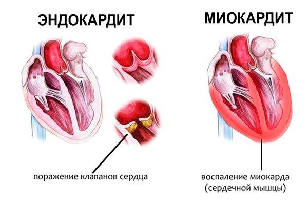 Эндокардит и миокардит