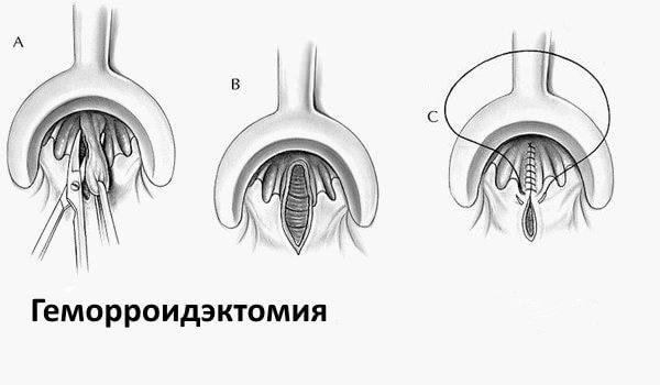 Геморроидоэктомия