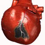 Симптомы инфаркта миокарда у мужчина