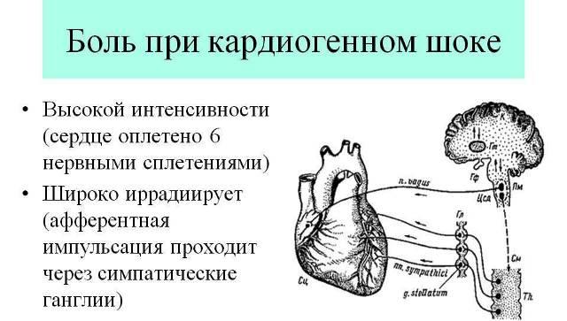 Боль при кардиогенном шоке