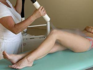 Криотерапия при варикозе