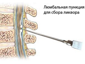 Люмбальная пункция