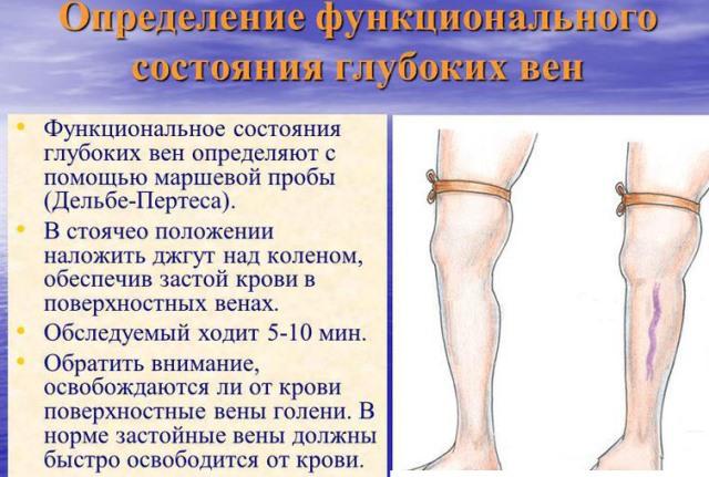 Маршевая проба при диагностике тромбоза