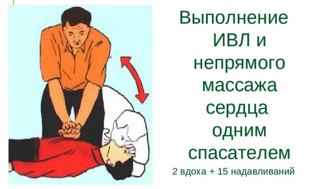 Непрямой массаж сердца с ИВЛ