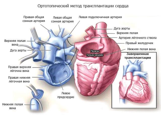 Ортотопический метод пересадки сердца