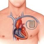 После установки кардиостимулятора