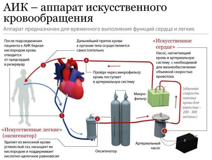Система искусственного кровообращения