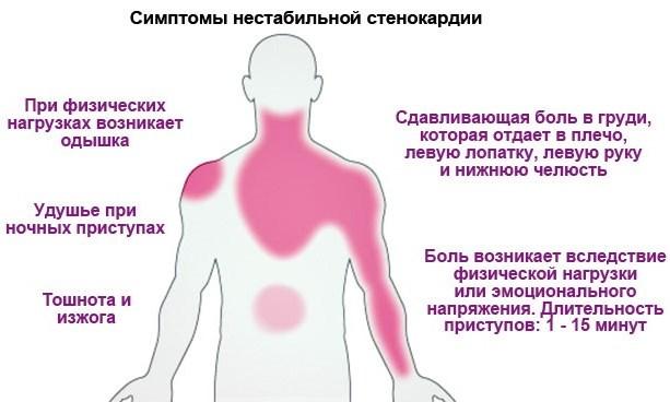 Боли в сердце при нестабильной стенокардии