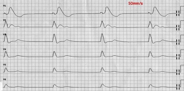 Как выглядит тампонада сердца на ЭКГ