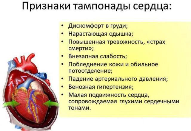 Признаки тампонады сердца