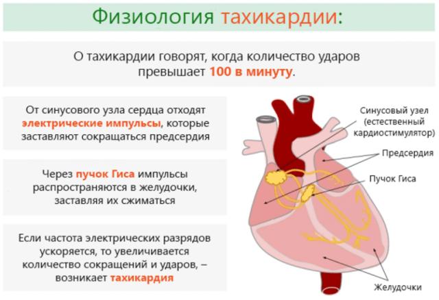 Настойка при тахикардии