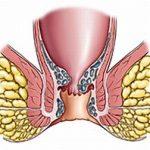 Тромбофлебит геморроидальных вен