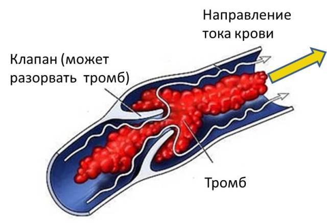 Тромбоз при создании фистулы