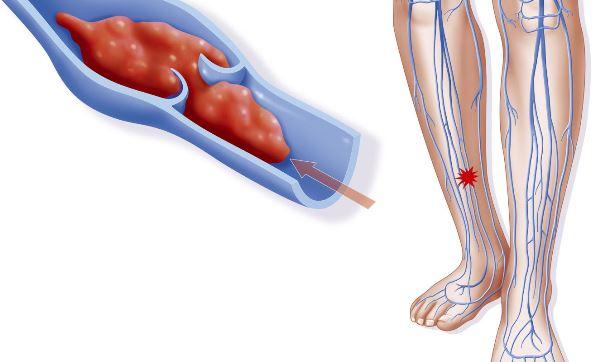 Что такое тромбоз