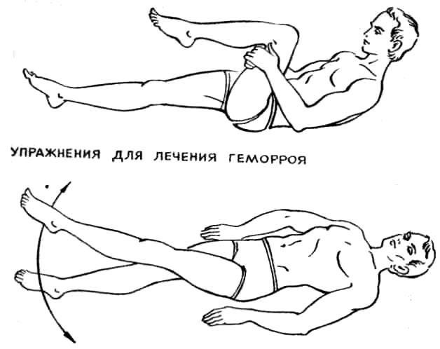 Наружный геморрой упражнения для профилактики
