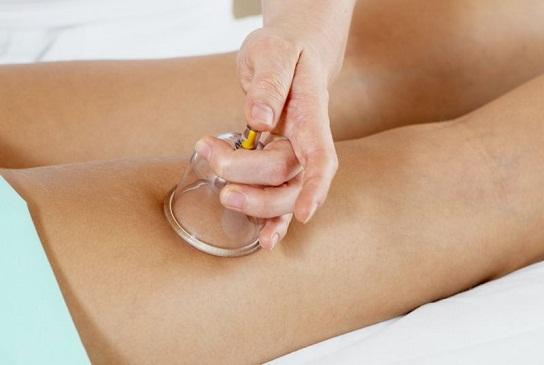 Баночный массаж для ног