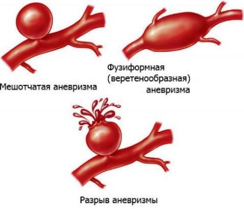Виды аневризмы сонной артерии