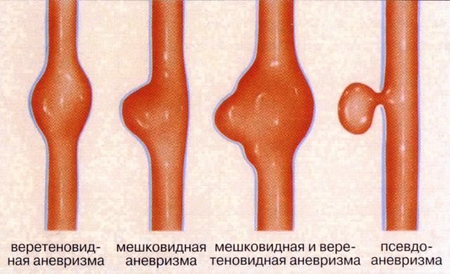 Существующие виды аневризмы