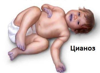 цианоз у ребенка