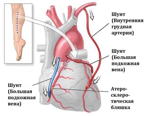 Схема аортокоронарного шунтирования