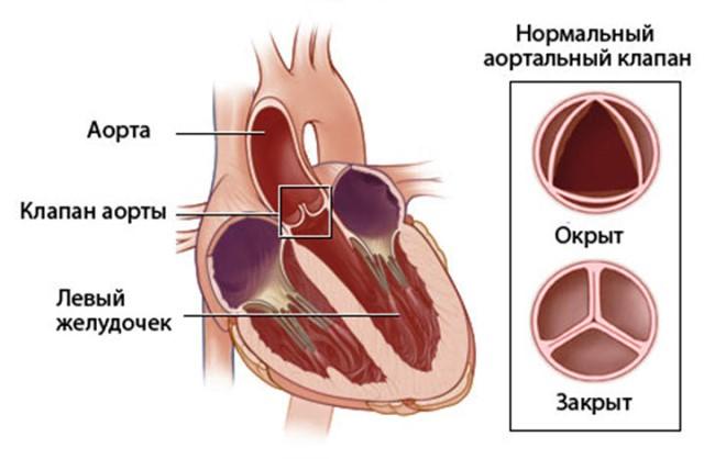 Аортальная патология