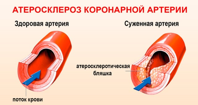 Атеросклероз коронарной артерии