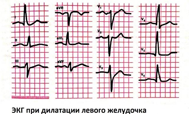 ЭКГ при дилатации левого желудочка