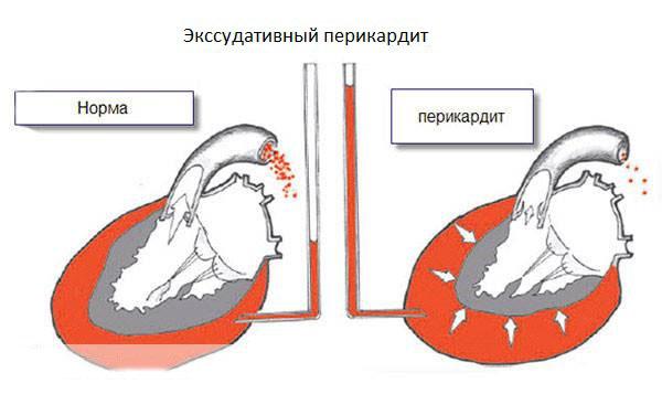 Экссудативный перикардит
