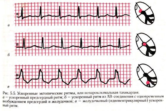 Как проявляется эктопический ритм на ЭКГ