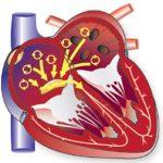 фебрилляция желудочков сердца