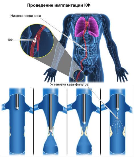 Имплантация кава-фильтра
