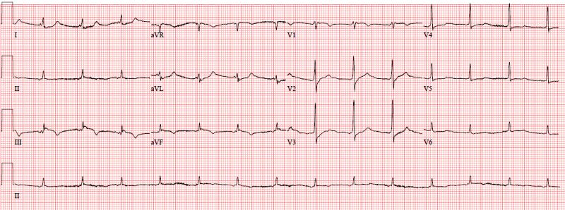Инфаркт правого желудочка на ЭКГ