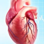 Кальциноз сердца