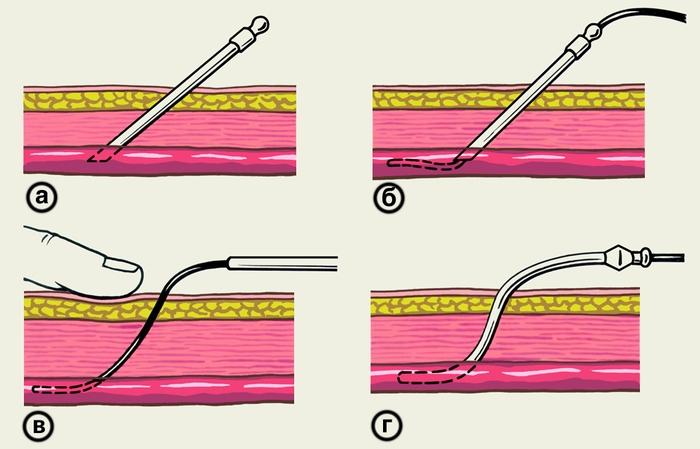 Катетеризация вены