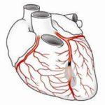Коронаграфия сосудов сердца