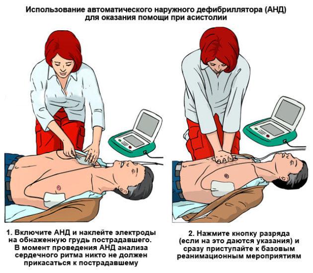 Методика применения дефибриллятора