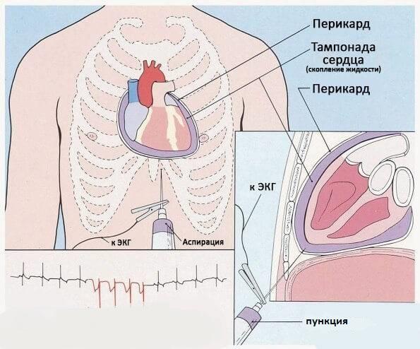 Диагностическая пункция при перикардите