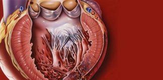 Разрыв миокарда