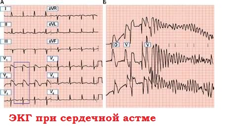 ЭКГ при сердечной астме