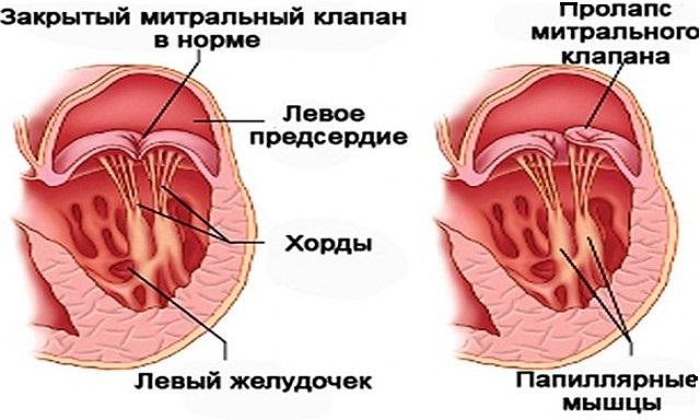 Сердечные хорды