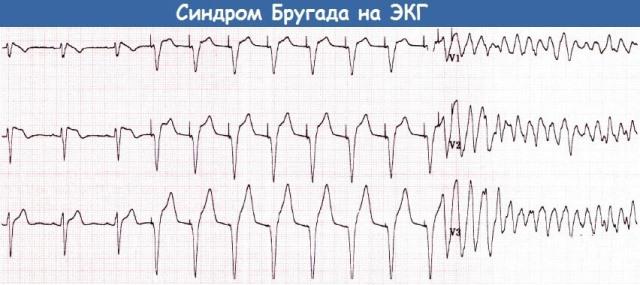 Синдром Бругада на ЭКГ