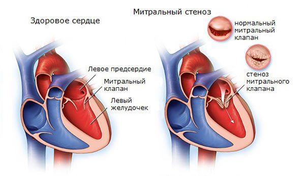 Стеноз митрального клапана