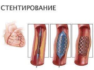 Стентирование при внутрижелудочковой блокаде