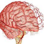 Тромбоз сосудов головного мозга