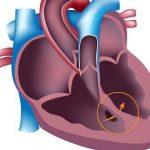 Врожденные пороки сердца