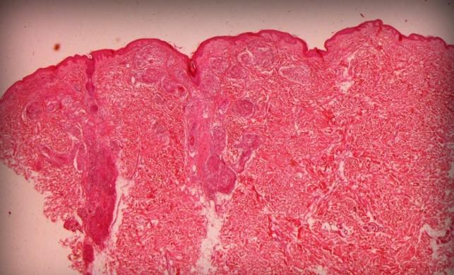 бациллярный ангиоматоз