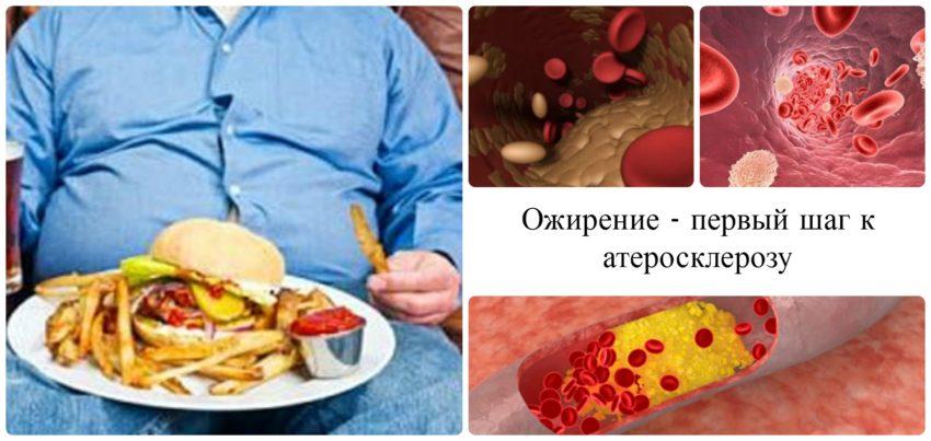 ожирение и атеросклероз